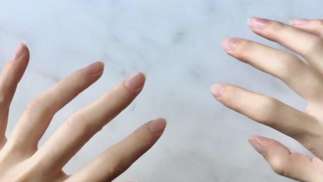 手汗のレベルと手汗の原因